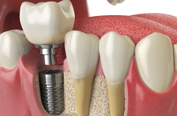 Why Is Bone Growth Necessary For Implants