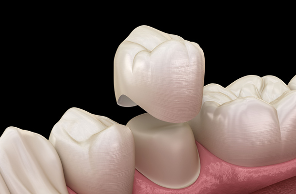 Why Might Dental Crowns Be Needed